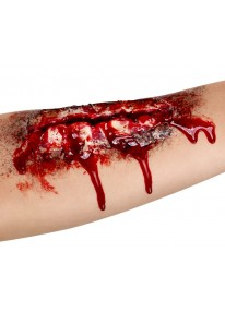 Open Wound Scar